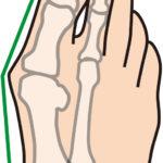 外反母趾で歩くのが痛い!靴以外に原因となる足指の格好とチェック法。